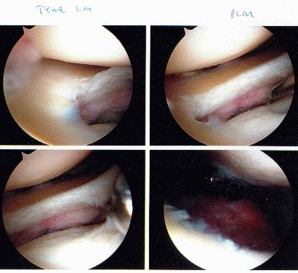 achilles tendon tear seen during surgery
