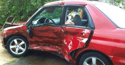 car accident that caused a broken rib