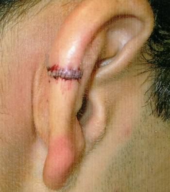 ear injury after surgery