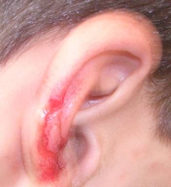 ear laceration injury before surgery