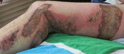 Third degree burns on a leg from a motorcycle accident