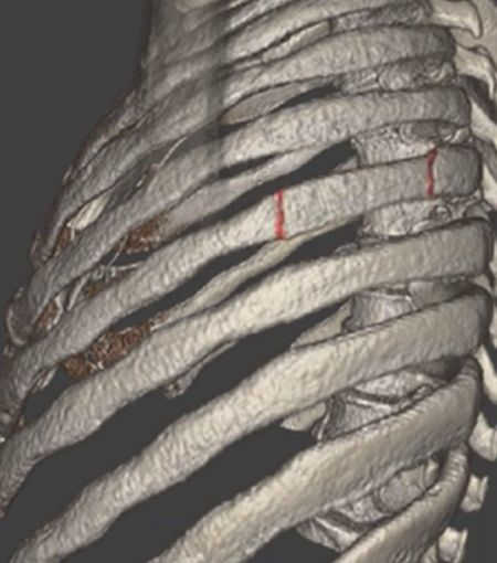 3-D color MRI showing displaced rib fractures
