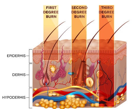 graphic image showing the severity of first, second and third degree burns