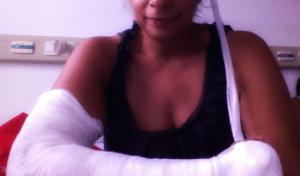 annbrown-broken arm