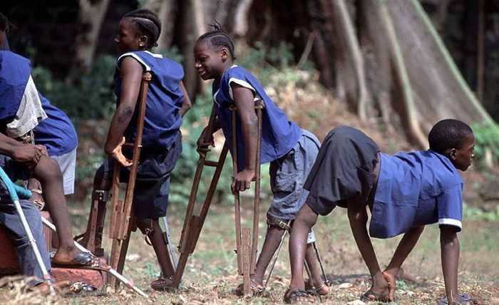 World Polio Day: CSOs warn of dire impact of diminished global funding