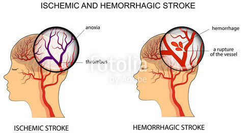 26 out of 1000 Nigerians suffer stroke daily – Iwuozo