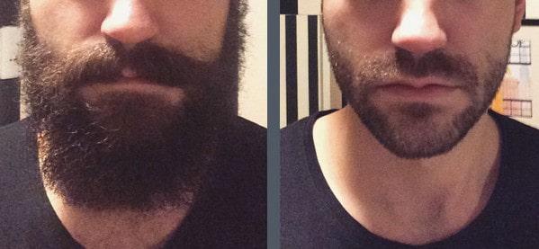 Men's Beard Growth