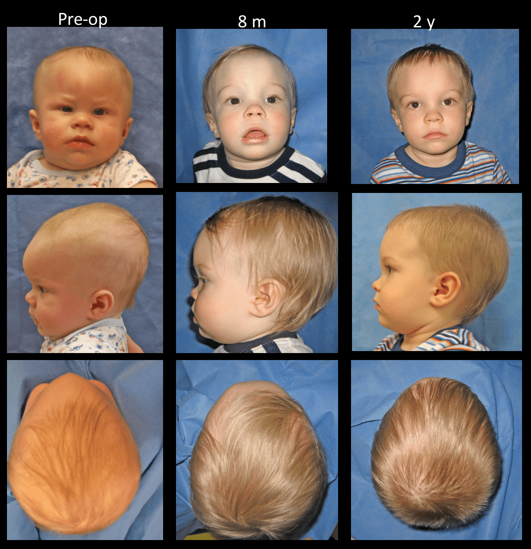 craniosynostosis photos