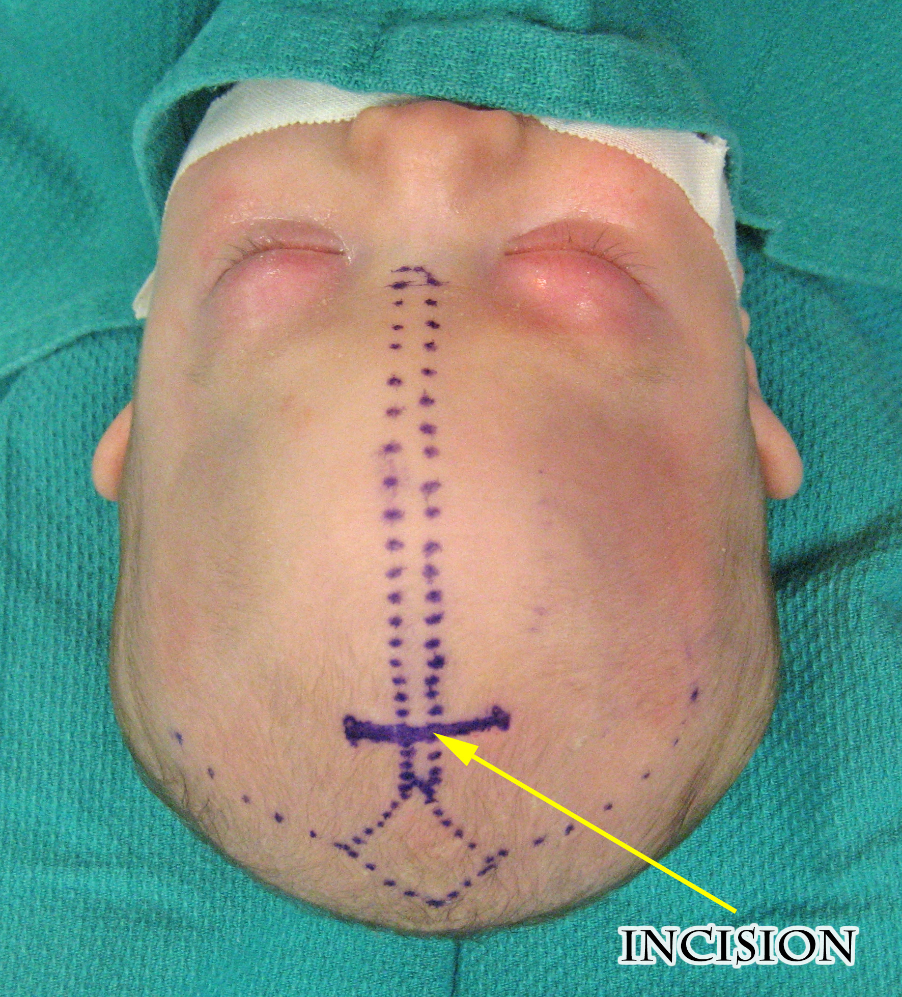 Metopic incision 1