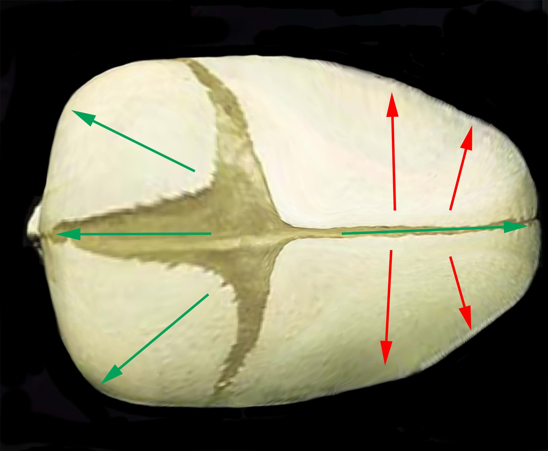 Sagittal skull arrows