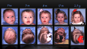 coronal craniosynostosis before and after