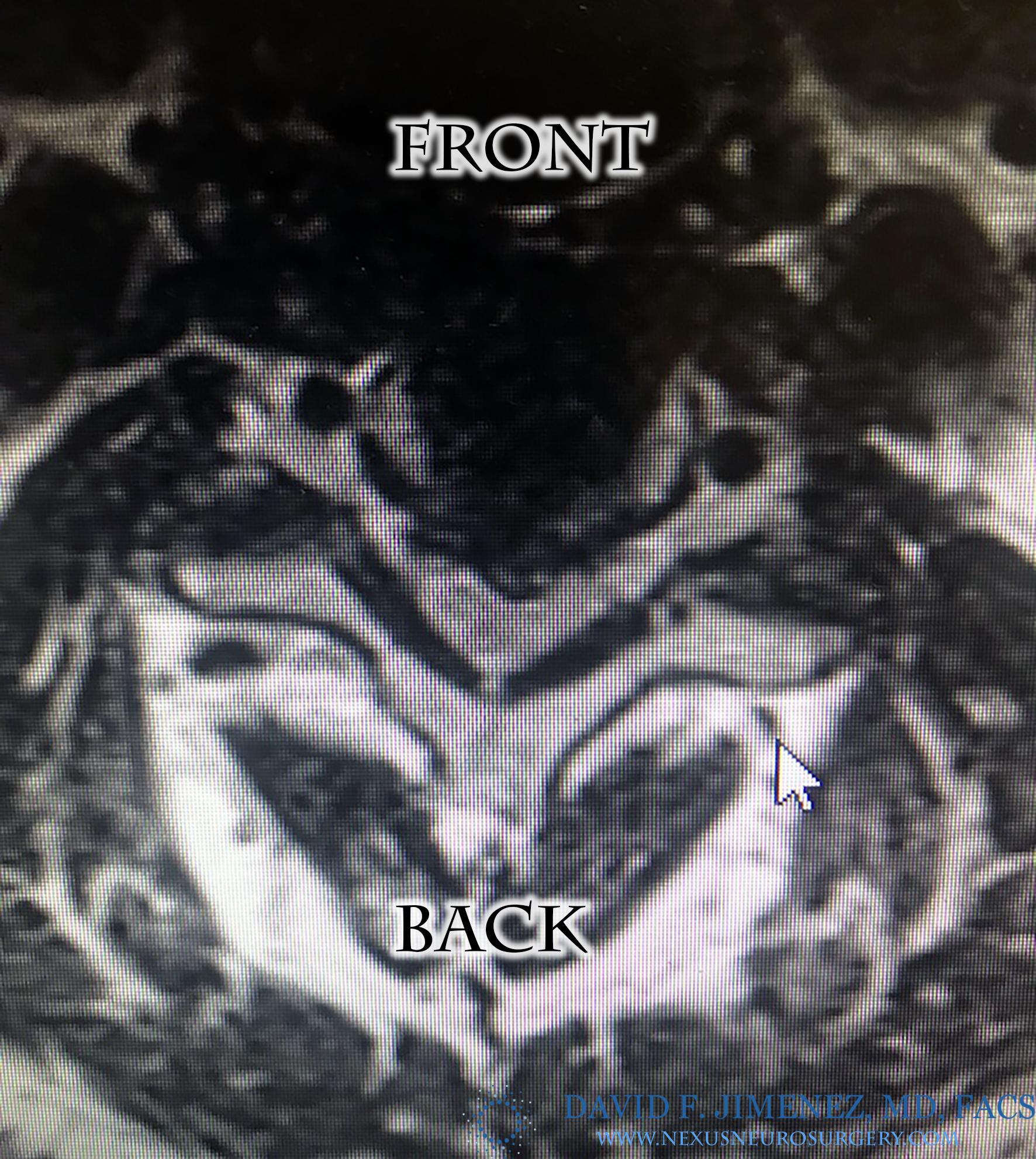 MRI Axial C steno logo