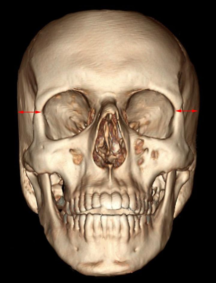 Skull normal