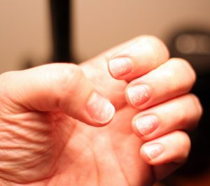 Castor Oil Benefits for Brittle Nails