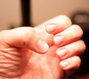 Castor Oil Benefits for Brittle Nails