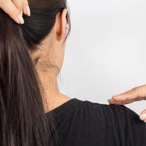 Grapeseed Oil Benefits for Preventing Dandruff