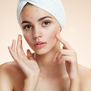 Jojoba Oil Benefits for Reducing Acne