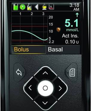 FDA APPROVES ARTIFICIAL PANCREASE SYSTEM.