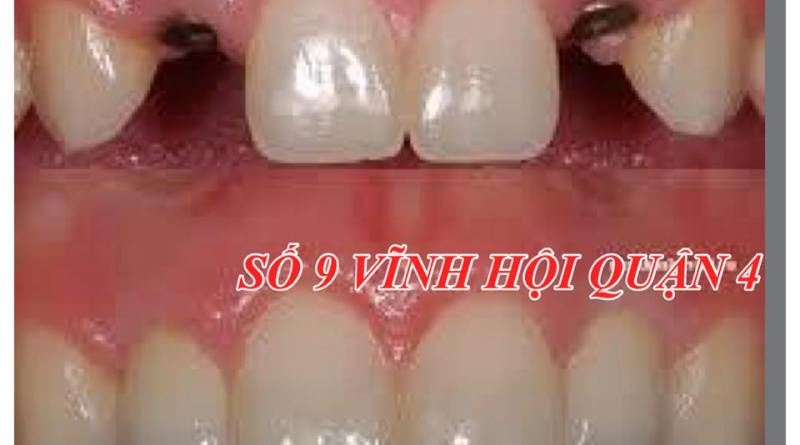 Răng Implant sau khi cấy ghép có tính thẩm mỹ cao và tồn tại lâu dài
