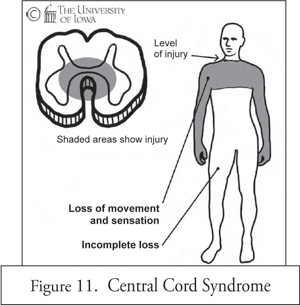 Central cord syndrome