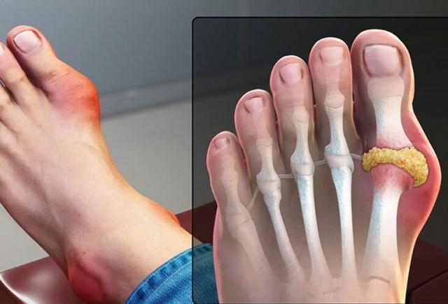 Bệnh gout - biểu hiện, triệu chứng và cách trị bệnh gút