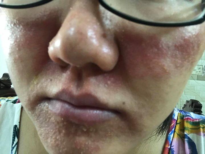 [Hướng Dẫn] Cách phục hồi da sau tác hại của rượu thuốc