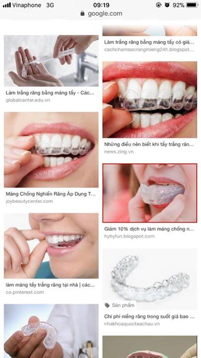 Máng tẩy trắng răng hiệu quả như thế nào? Có làm răng bị ê buốt và yếu đi không?