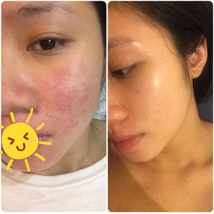 Quy trình skincare da cho da bị KÍCH ỨNG