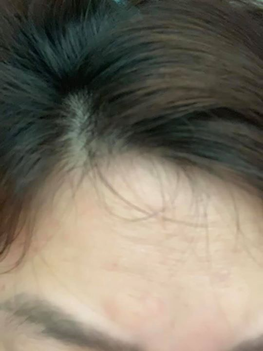 [Review] Kẹo dẻo kích thích mọc tóc SweetBunnyHare Hair Vitamin