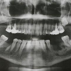 Inside Skull Diagram How Do I Draw A Family Tree Blog #7 Use Of Dental Radiography & Post-mortem | Niallhogan