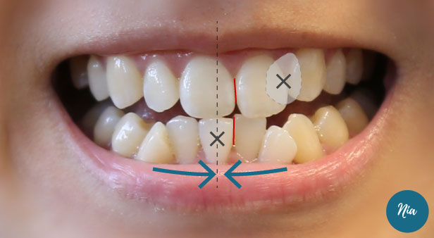 【Nia箍牙|隱適美】Vol.4 Re-confirm 療程 更新模擬動畫 | nianiawuu