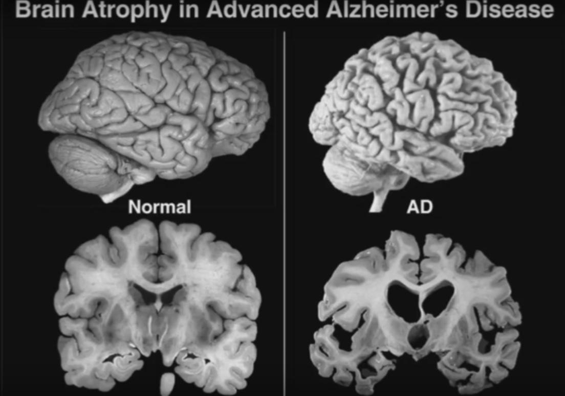 statines hersenen