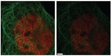 Porównanie obrazu z mikroskopu konfokalnego (po lewej) i STED (po prawej). Na zdjęciach wybarwione komórki: na czerwono oznaczone są pory jądrowe, na niebiesko - mikrotubule. /źródło: Hiersenmenzel et al., Front Endocrinol (2013)