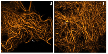 Zarejestrowane superrozdzielczą mikroskopią komórki HeLa. /źródło: Hoogendoorn et al., Sci Rep (2014)