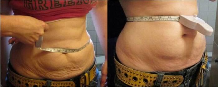 NidSun Pregnancy Scars treatment