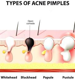 what causes acne what causes acne what causes acne 2 [ 1280 x 800 Pixel ]