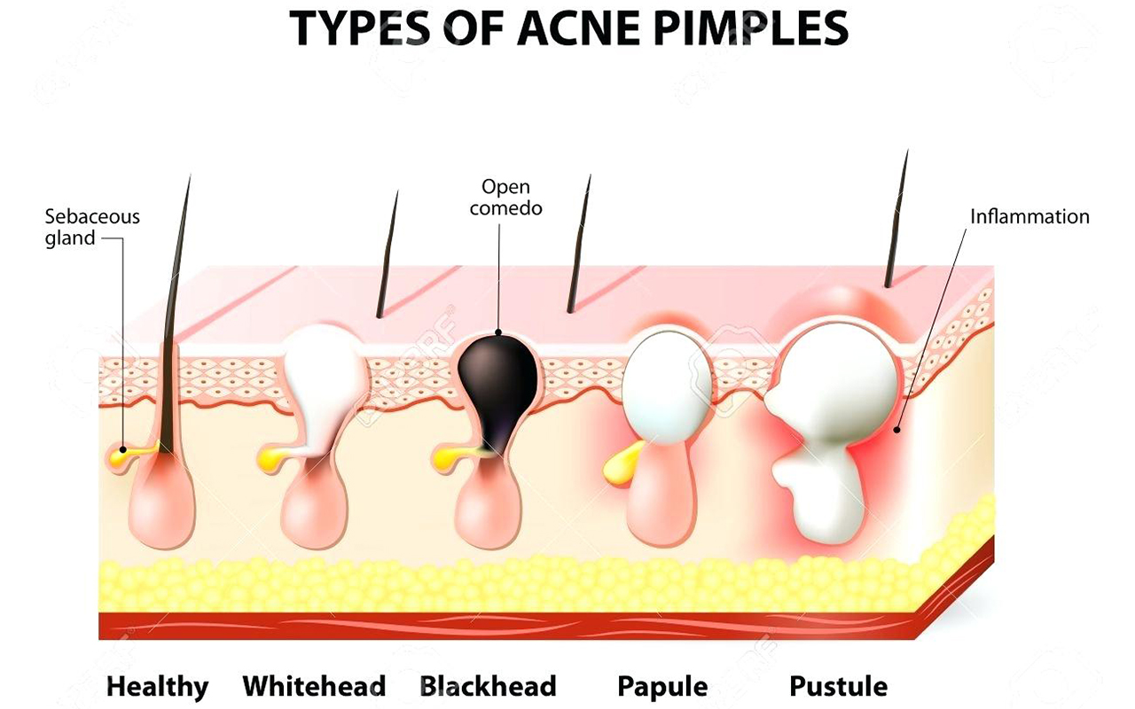 hight resolution of what causes acne what causes acne what causes acne 2