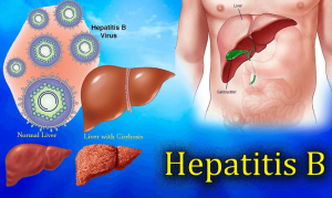 cost of hepatitis b treatment in nigeria