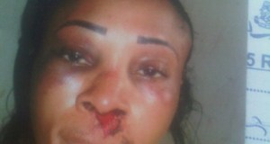 Landlady Battered By Female Tenant Over Marijuana