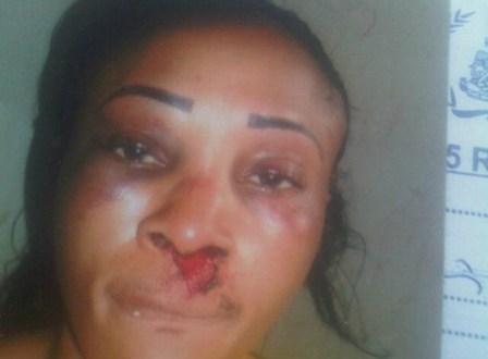 Landlady Battered By Female Tenant Over Marijuana