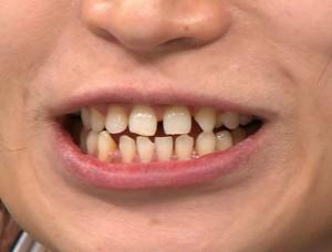 鬼龍院さんのすきっ歯&ガチャ歯