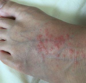 足の甲がかゆい!夏にできる赤いぶつぶつは多形滲出性紅斑か ...