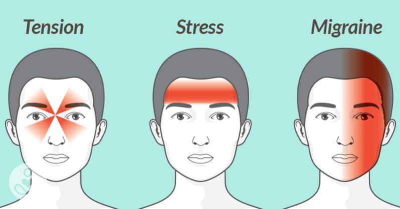 Image result for migraine headache