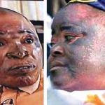 Side-effects of skin bleaching