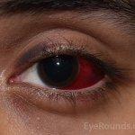 Bleeding in the eye