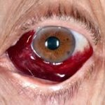 Side effects of colored contact lenses