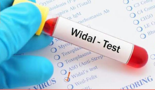 Typhoid Prognosis: Don't waste your cash, WIDAL TEST is a rip-off! - Nigerian Health Blog