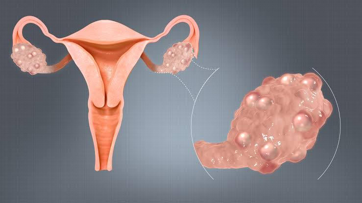 Ovarian Cyst: Signs, Causes, Exams, Remedy, Compilations and Cost of Surgery - Nigerian Health Blog