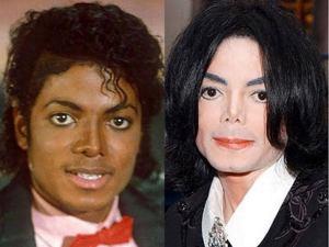 Treatment vitiligo in Nigeria