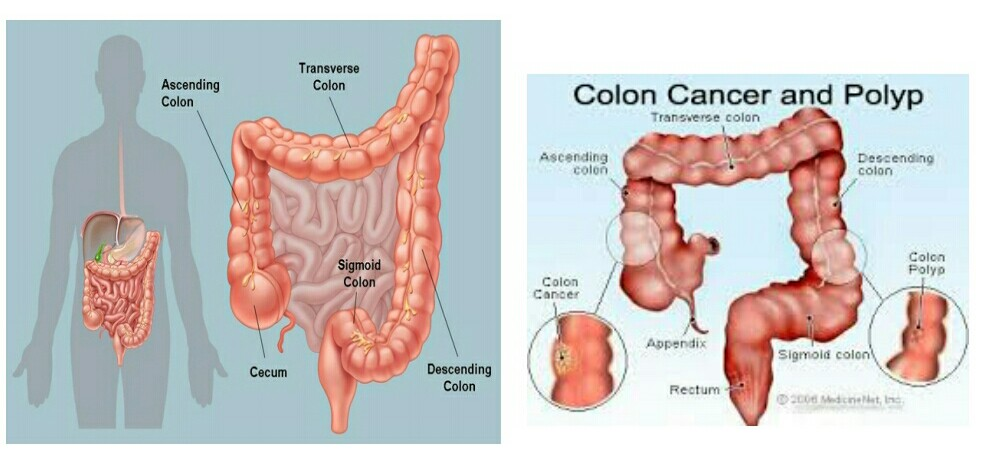 Colon cancer symptoms and signs